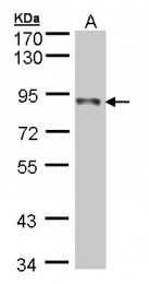 GTX105270 - NDUFS1