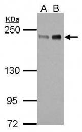 GTX105278 - ZEB1