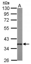 GTX105295 - PPP1CB