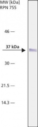 GTX10530 - Nucleophosmin