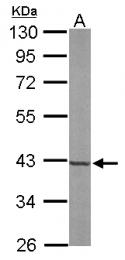 GTX105301 - FPP synthetase