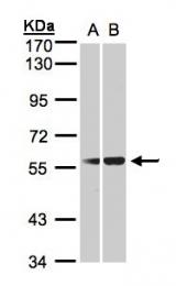 GTX105316 - SERPING1 / C1 Inhibitor