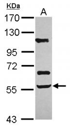 GTX105330 - Activin receptor type 2B (ACVR2B)
