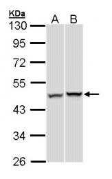 GTX105347 - PSMC5 / SUG1