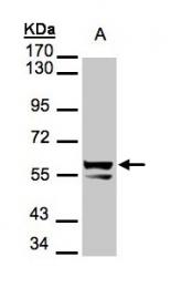 GTX105355 - Cytokeratin 6