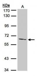 GTX105356 - AGXT2L1
