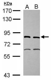 GTX105357 - ERCC2