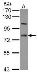 GTX105363 - Lanosterol synthase