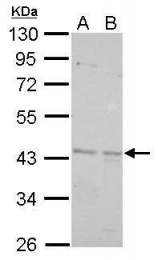 GTX105364 - BRE / BRCC45