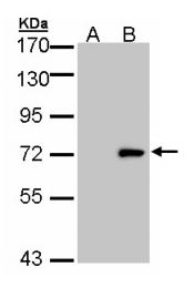 GTX105365 - Unc-51-like kinase 4 (ULK4)