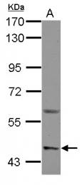 GTX105373 - ASIC1 / ACCN2