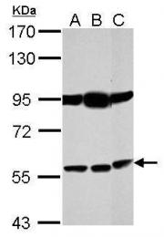 GTX105387 - Bestrophin-1