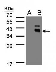 GTX105394 - Protein phosphatase 1K / PPM1K