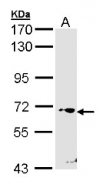 GTX105489 - ROR-gamma / RORC