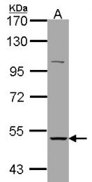 GTX105495 - Neuronal acetylcholine receptor subunit alpha-3