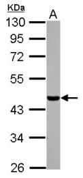 GTX105584 - Casein kinase I isoform alpha-like