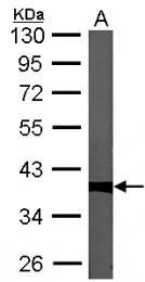 GTX105618 - PPP1CC