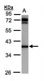 GTX105620 - AKR1C1 / DHH1
