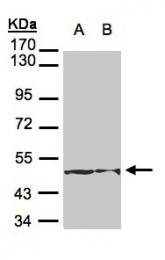 GTX105624 - Cytokeratin 18