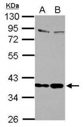 GTX105647 - Selenoprotein P (SEPP1)