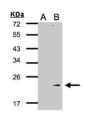 GTX105683 - Glutathione peroxidase 7 / GPX7