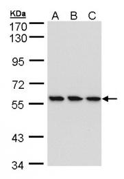GTX105694 - RNGTT / HCE