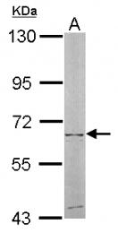 GTX105719 - NT5C2