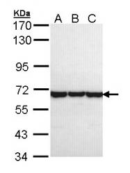 GTX105725 - CCT8 / TCP1 theta