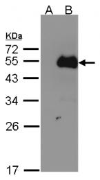 GTX105749 - NFIB