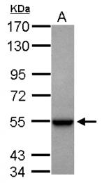 GTX105765 - Glutamate dehydrogenase 1