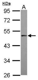 GTX105778 - MAPKAP Kinase-5