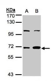 GTX105782 - GTP-binding protein 1 / GBP1