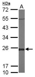 GTX105792 - Glyoxalase I / GLO1