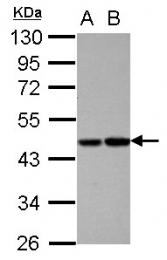 GTX105844 - Protein C / PROC