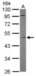 GTX105877 - Protein ALEX