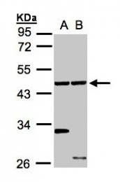 GTX105887 - Ethanolamine kinase 1