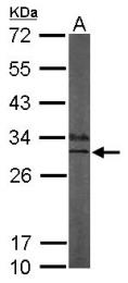 GTX105901 - Calsenilin