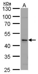 GTX105914 - Calsequestrin-2