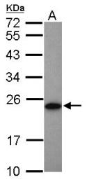 GTX106079 - Adenylate kinase 1 (AK1)