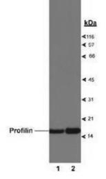 GTX10608 - Profilin-1 / PFN1