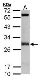 GTX106100 - IPP isomerase 1 / IDI1
