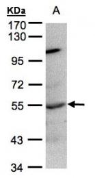 GTX106104 - PTPN1