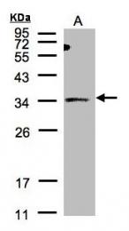 GTX106121 - ST3GAL1 / SIAT4