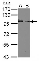 GTX106130 - CD238 / KEL