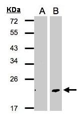 GTX106150 - Dermatopontin