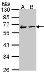 GTX106155 - Arylsulfatase A