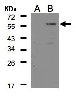 GTX106177 - Carboxypeptidase E