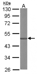 GTX106180 - SDCCAG3