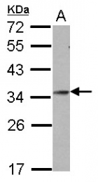 GTX106191 - Homeobox protein goosecoid / GSC