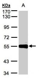 GTX106203 - Carboxypeptidase M
